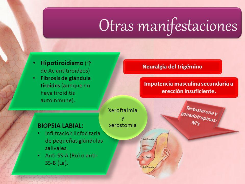 Otras manifestaciones BIOPSIA LABIAL: Infiltración linfocitaria de pequeñas glándulas salivales. Anti-SS-A (Ro) o anti- SS-B (La). BIOPSIA LABIAL: Inf