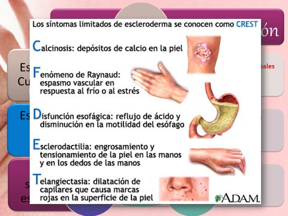 Afección orgánica, sin afección cutánea. Clasificación Características principales Daño vascular Activación inmunitaria Síntesis y depósitos excesivos