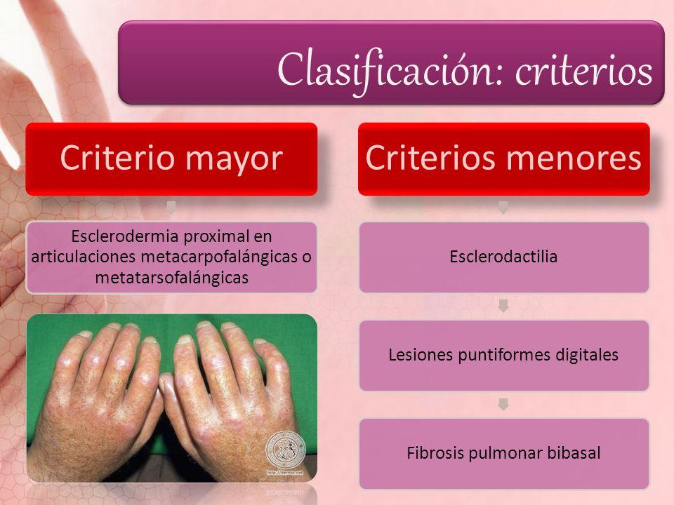 Clasificación: criterios Criterio mayor Esclerodermia proximal en articulaciones metacarpofalángicas o metatarsofalángicas Criterios menores Escleroda