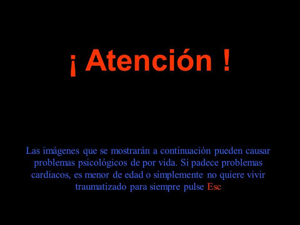 ¡ Atención .