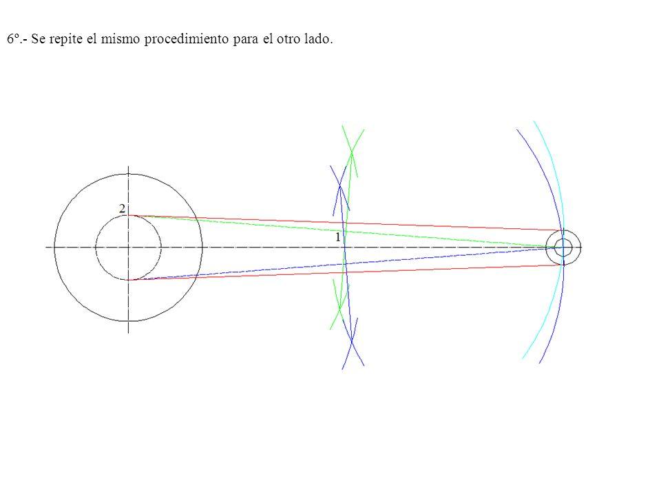 6º.- Se repite el mismo procedimiento para el otro lado.