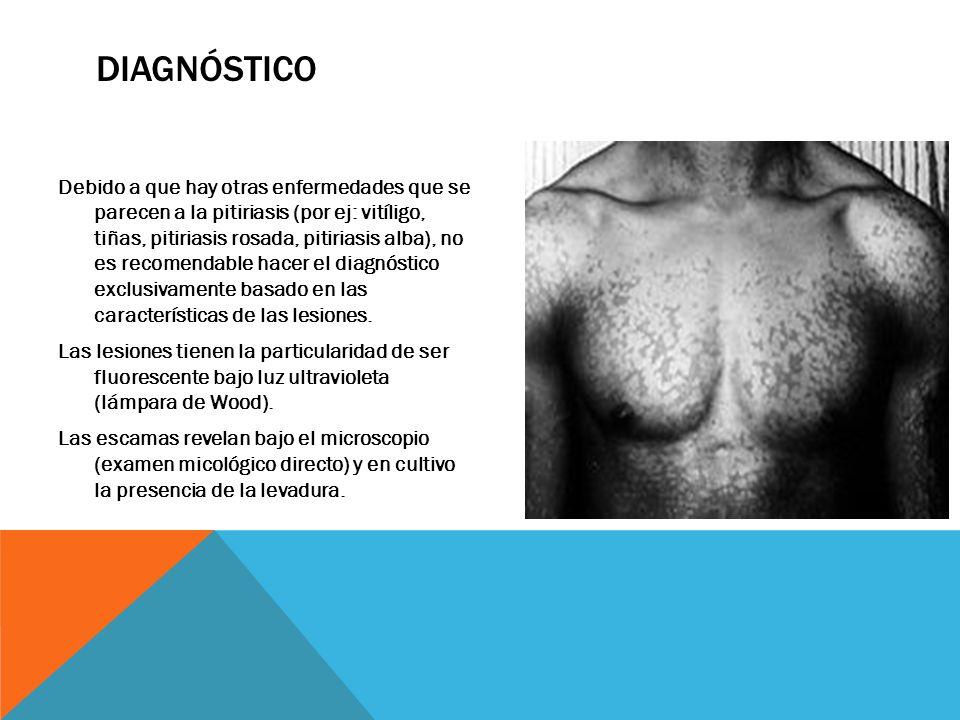 DIAGNÓSTICO Debido a que hay otras enfermedades que se parecen a la pitiriasis (por ej: vitíligo, tiñas, pitiriasis rosada, pitiriasis alba), no es recomendable hacer el diagnóstico exclusivamente basado en las características de las lesiones.