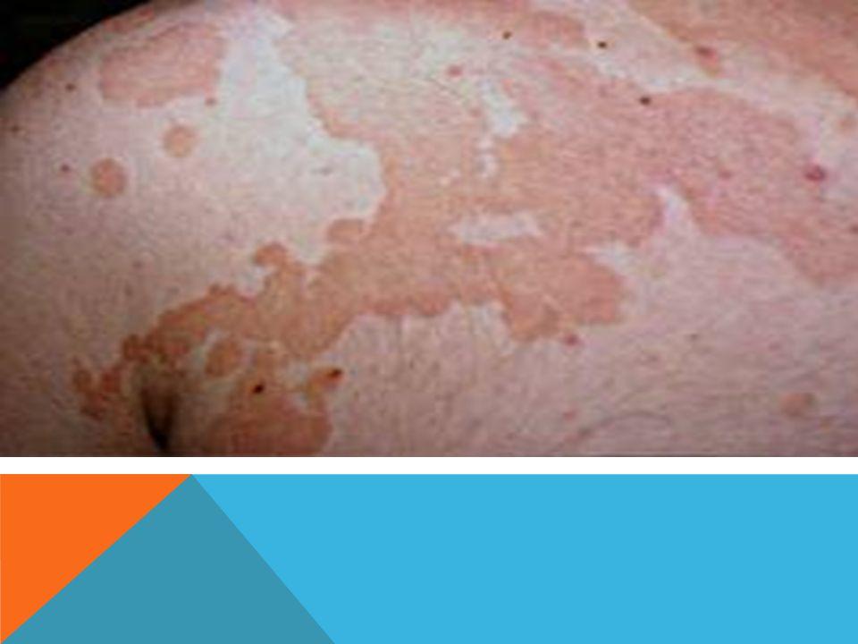 TRATAMIENTO El uso de los antifúngicos adecuados por vía tópica (butenafina, hongoseril, miconazol o ciclopirox, entre otros) cura un alto porcentaje de casos.