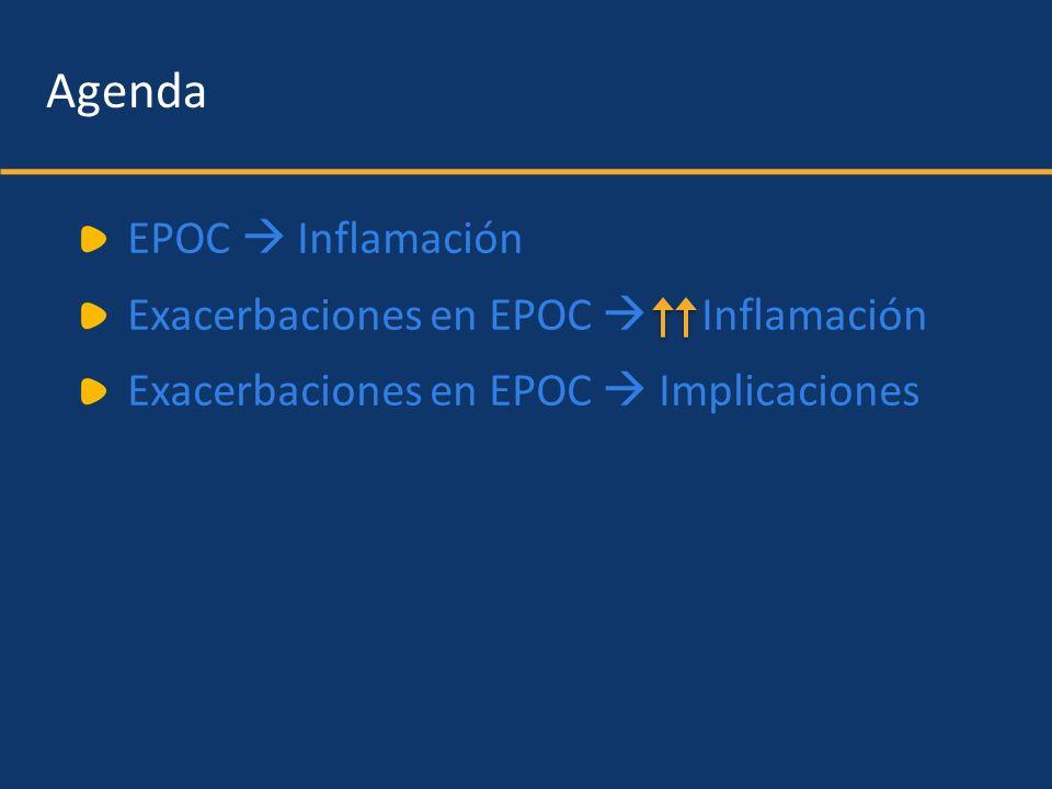 Agenda EPOC Inflamación Exacerbaciones en EPOC Inflamación Exacerbaciones en EPOC Implicaciones