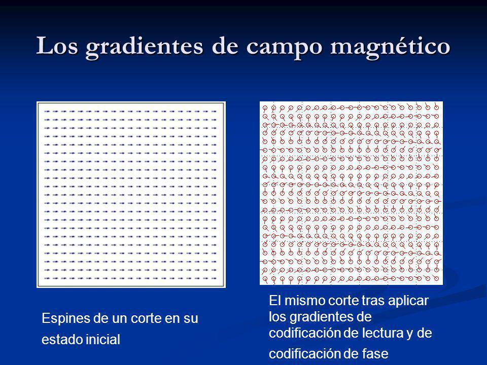 Los gradientes de campo magnético Espines de un corte en su estado inicial El mismo corte tras aplicar los gradientes de codificación de lectura y de codificación de fase