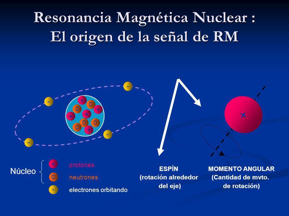Resonancia Magnética Nuclear : El origen de la señal de RM protones electrones orbitando - Núcleo + 0 neutrones 0 0 00 + + + + + 0 - - - - + ESPÍN (rotación alrededor del eje) MOMENTO ANGULAR (Cantidad de mvto.