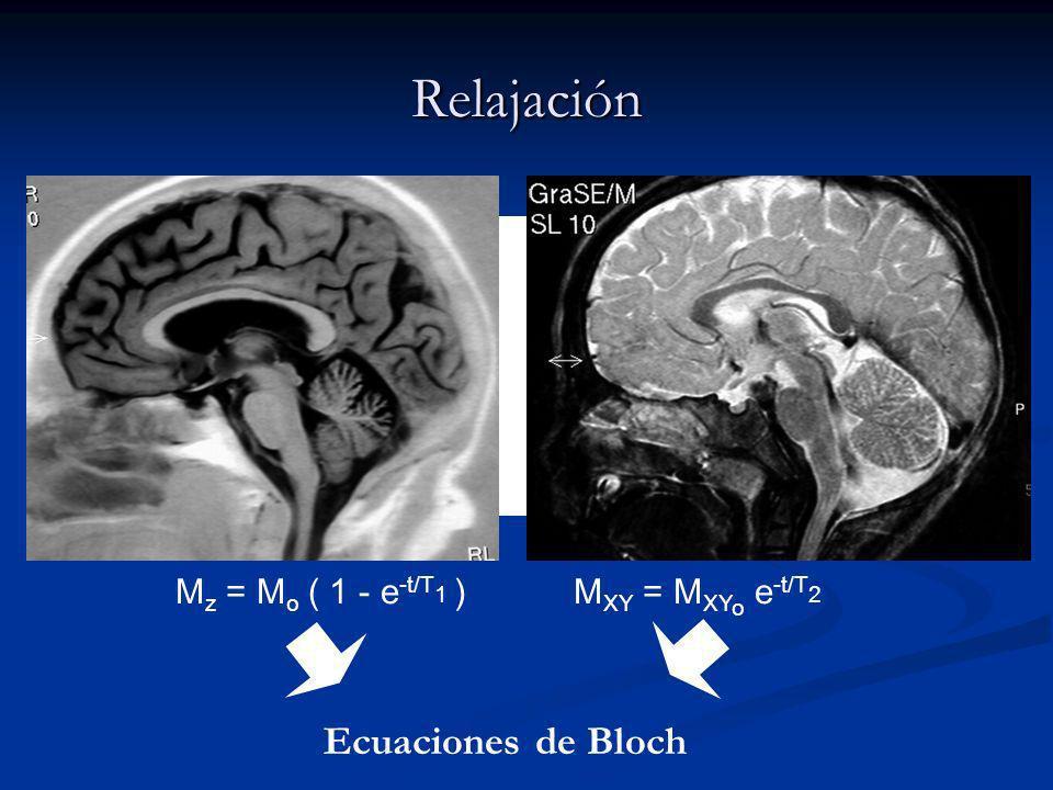Relajación M z = M o ( 1 - e -t/T 1 )M XY = M XY o e -t/T 2 Contraste en T 1 Contraste en T 2 Ecuaciones de Bloch