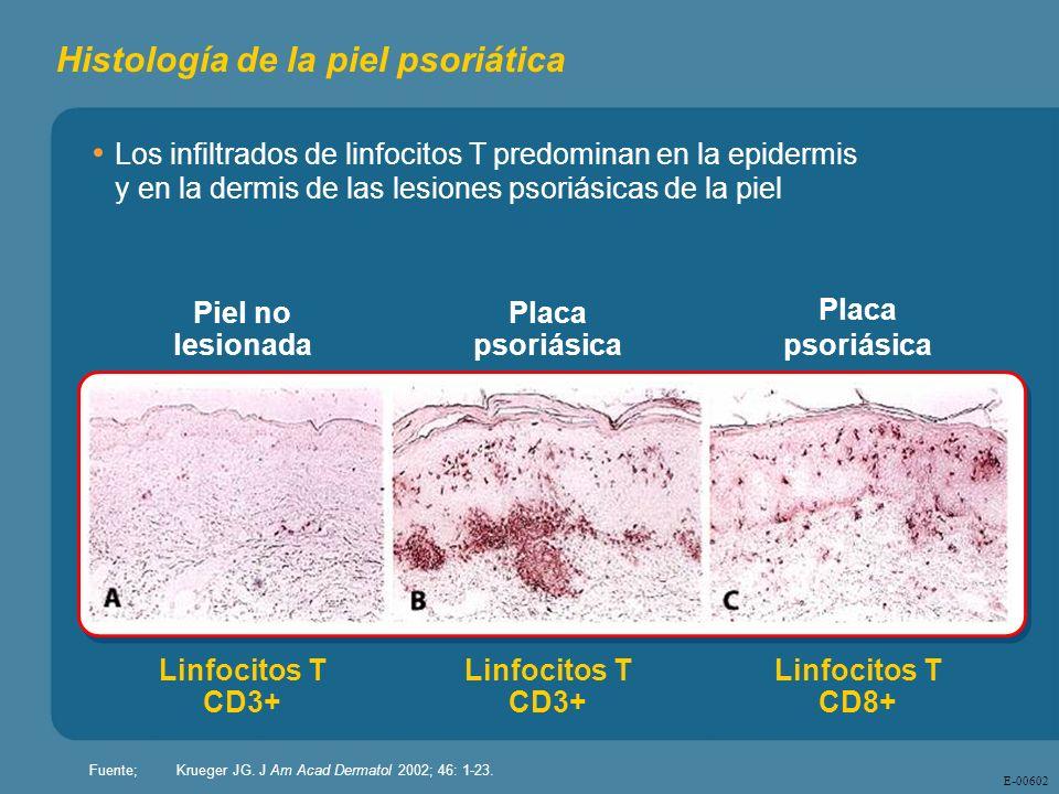 E - 00602 Histología de la piel psoriática Los infiltrados de linfocitos T predominan en la epidermis y en la dermis de las lesiones psoriásicas de la