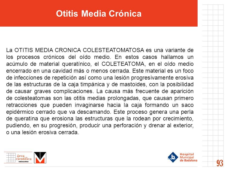 Otitis Media Crónica 93 La OTITIS MEDIA CRONICA COLESTEATOMATOSA es una variante de los procesos crónicos del oído medio. En estos casos hallamos un a