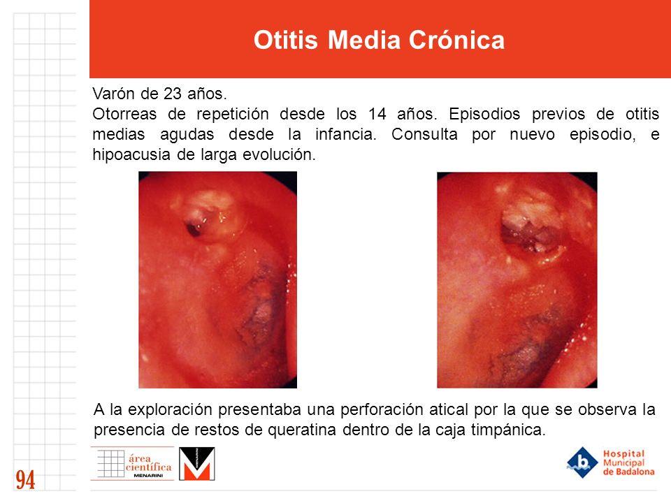 Otitis Media Crónica 94 Varón de 23 años.Otorreas de repetición desde los 14 años.