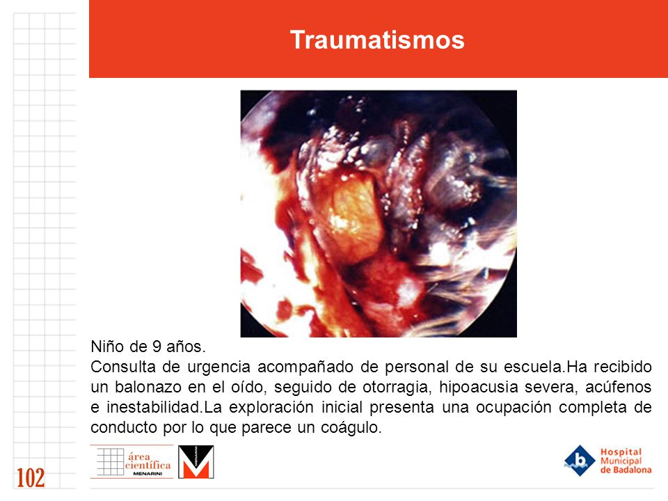 Traumatismos 102 Niño de 9 años. Consulta de urgencia acompañado de personal de su escuela.Ha recibido un balonazo en el oído, seguido de otorragia, h