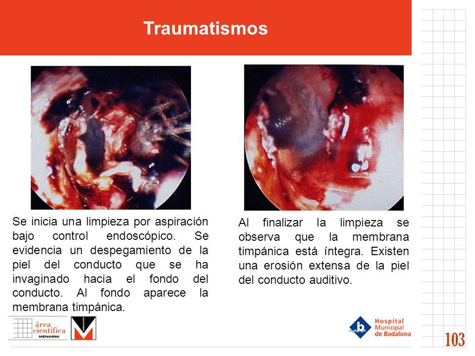 Traumatismos 103 Se inicia una limpieza por aspiración bajo control endoscópico. Se evidencia un despegamiento de la piel del conducto que se ha invag