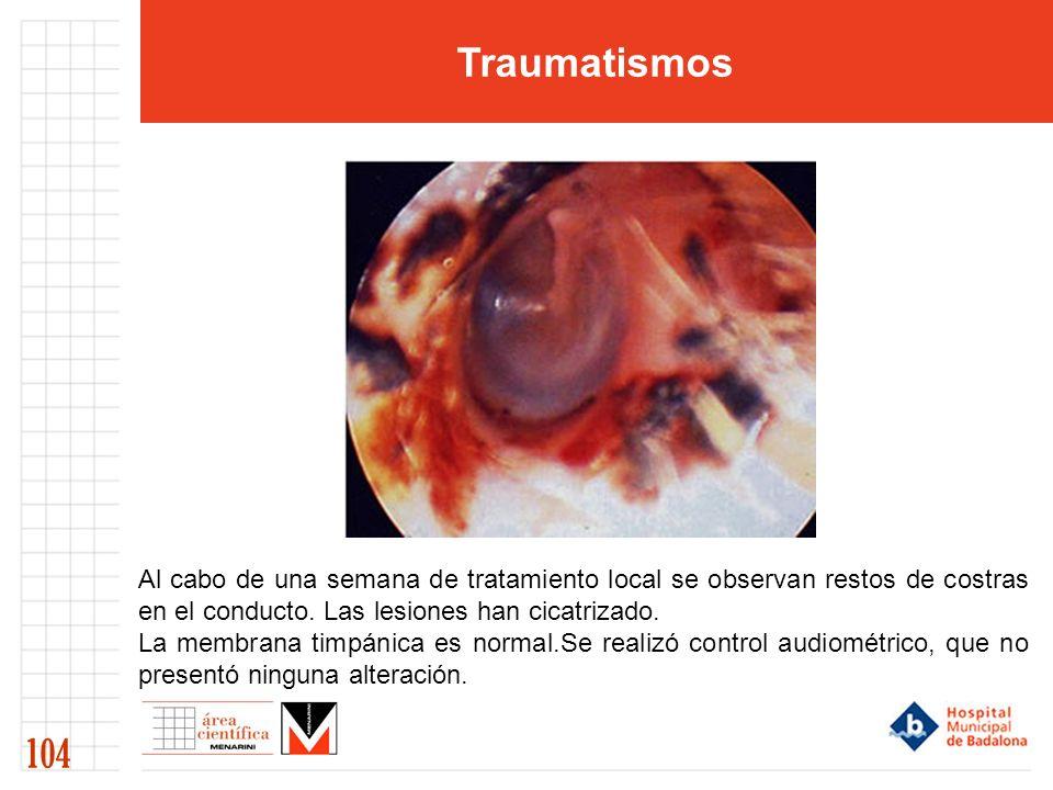 Traumatismos 104 Al cabo de una semana de tratamiento local se observan restos de costras en el conducto. Las lesiones han cicatrizado. La membrana ti