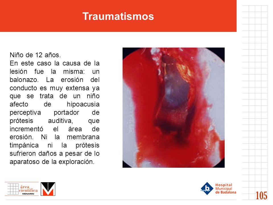 Traumatismos 105 Niño de 12 años. En este caso la causa de la lesión fue la misma: un balonazo. La erosión del conducto es muy extensa ya que se trata