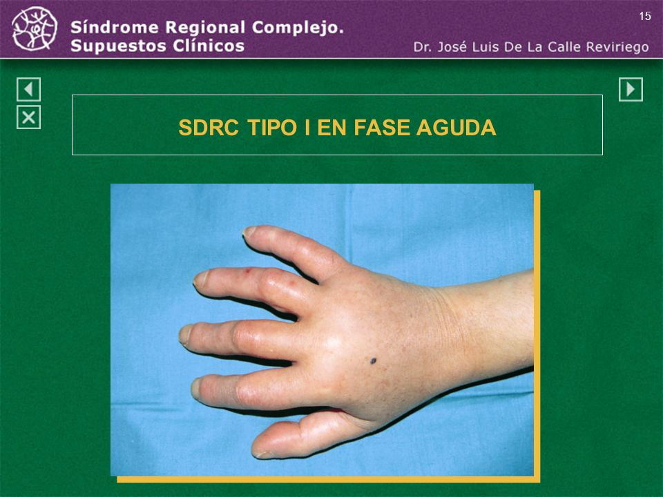 15 SDRC TIPO I EN FASE AGUDA