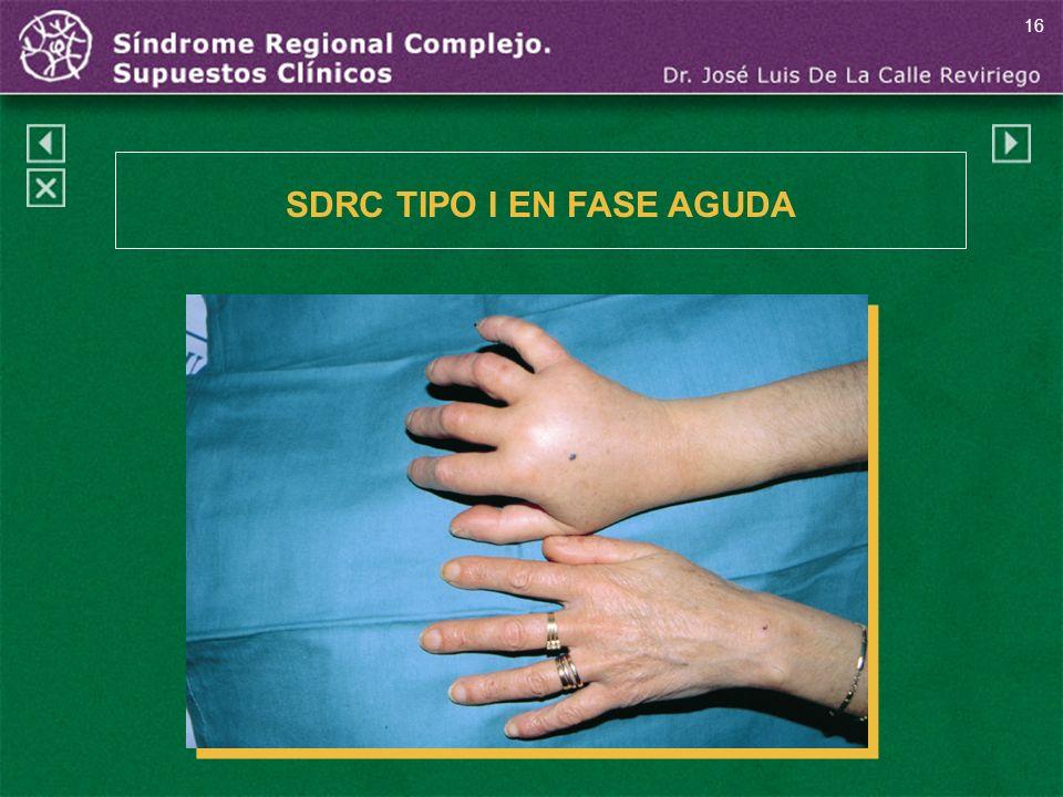 16 SDRC TIPO I EN FASE AGUDA