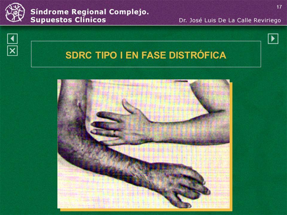 17 SDRC TIPO I EN FASE DISTRÓFICA
