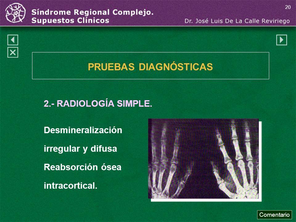 2.- RADIOLOGÍA SIMPLE. Desmineralización irregular y difusa Reabsorción ósea intracortical. PRUEBAS DIAGNÓSTICAS Comentario 20