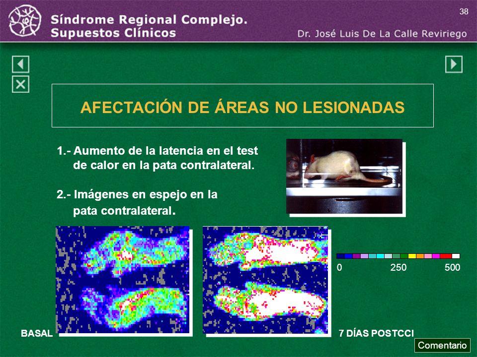 1.- Aumento de la latencia en el test de calor en la pata contralateral. 2.- Imágenes en espejo en la pata contralateral. BASAL7 DÍAS POSTCCI 0 250 50