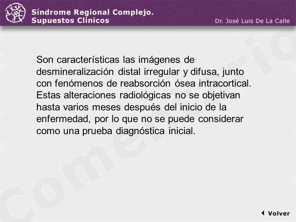 Comentario a la diapo21 Son características las imágenes de desmineralización distal irregular y difusa, junto con fenómenos de reabsorción ósea intra