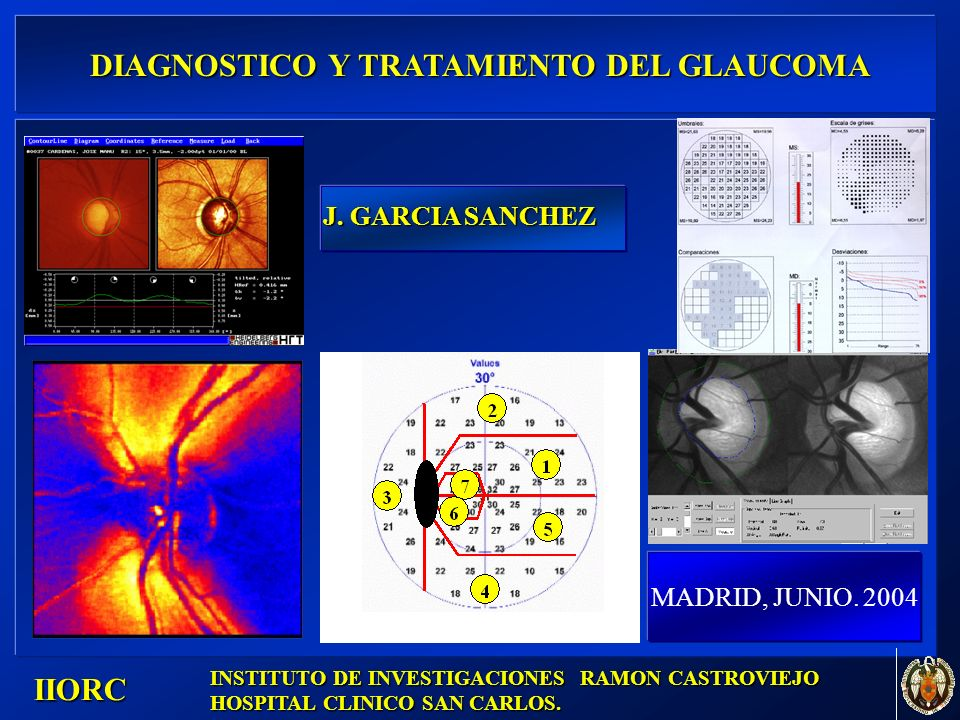 . IIORC DIAGNOSTICO Y TRATAMIENTO DEL GLAUCOMA DIAGNOSTICO Y TRATAMIENTO DEL GLAUCOMA MADRID, JUNIO. 2004 INSTITUTO DE INVESTIGACIONES RAMON CASTROVIE