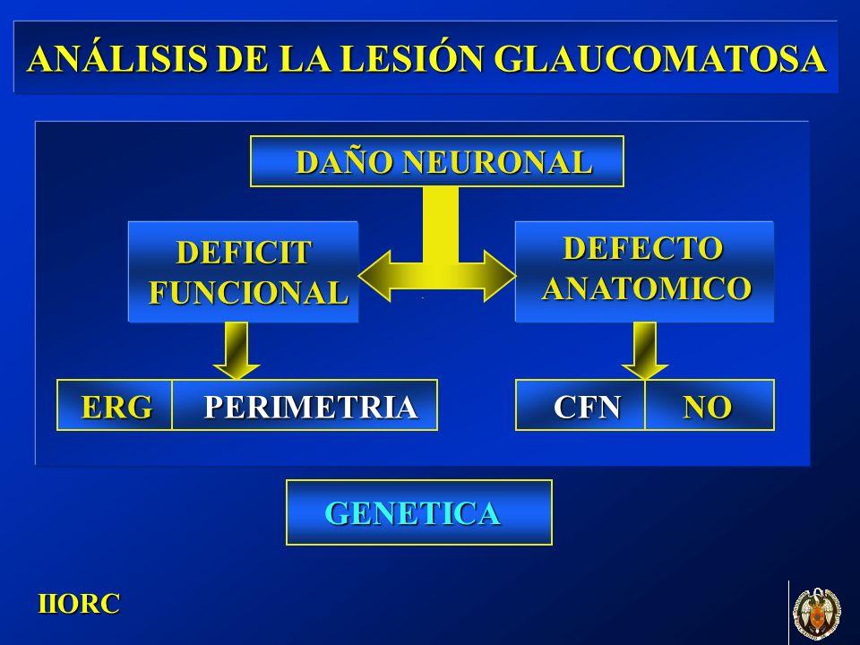 . IIORC ANÁLISIS DE LA LESIÓN GLAUCOMATOSA DAÑO NEURONAL DEFICIT FUNCIONAL FUNCIONAL DEFECTOANATOMICO CFNNOERGPERIMETRIA GENETICA