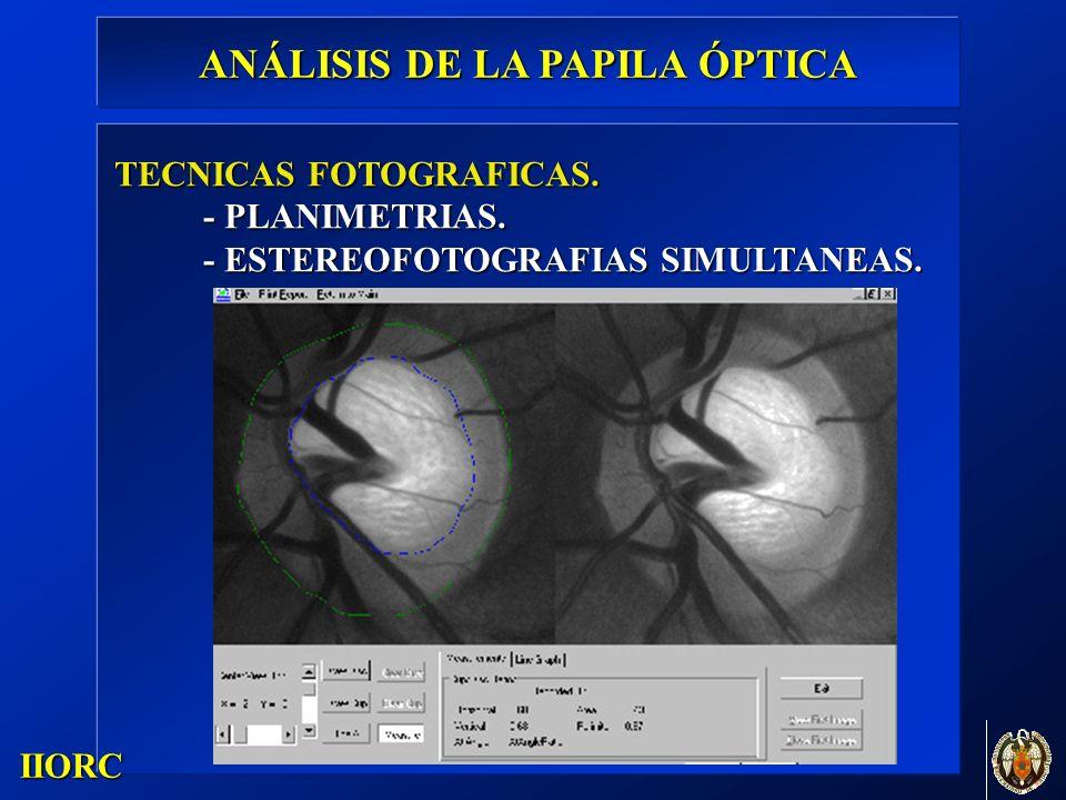 . IIORC TECNICAS FOTOGRAFICAS. - PLANIMETRIAS. - ESTEREOFOTOGRAFIAS SIMULTANEAS. ANÁLISIS DE LA PAPILA ÓPTICA