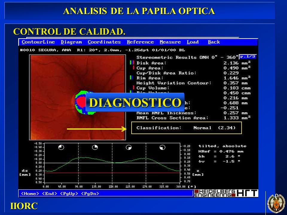 CONTROL DE CALIDAD. IIORC ANALISIS DE LA PAPILA OPTICA DIAGNOSTICO