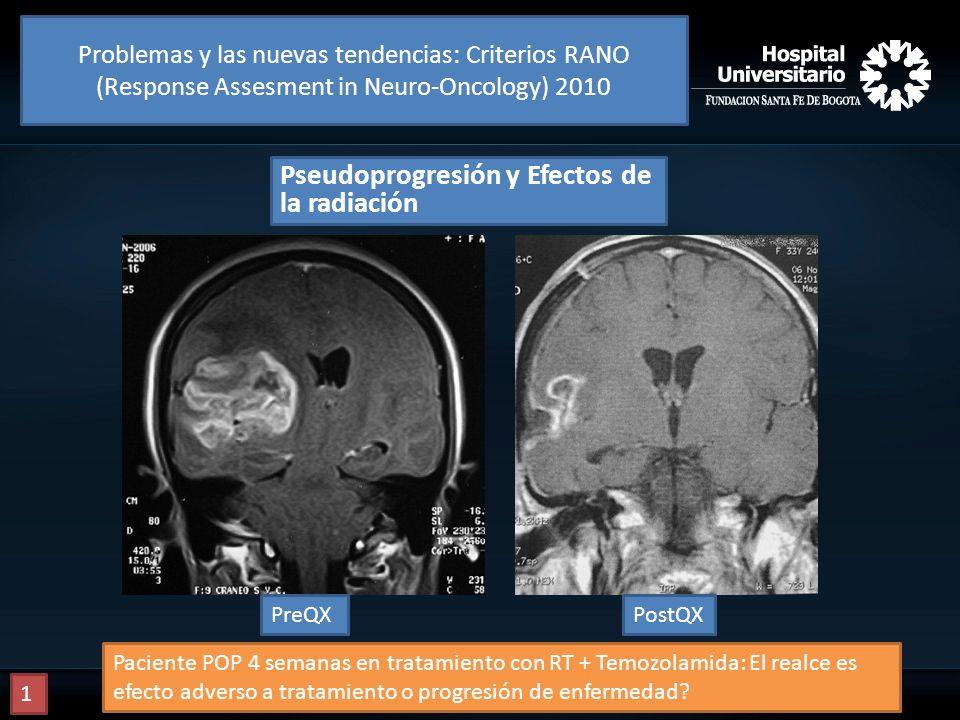 Pseudoprogresión y Efectos de la radiación PreQXPostQX Paciente POP 4 semanas en tratamiento con RT + Temozolamida: El realce es efecto adverso a trat