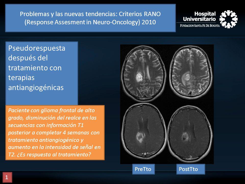 Pseudorespuesta después del tratamiento con terapias antiangiogénicas Paciente con glioma frontal de alto grado, disminución del realce en las secuenc