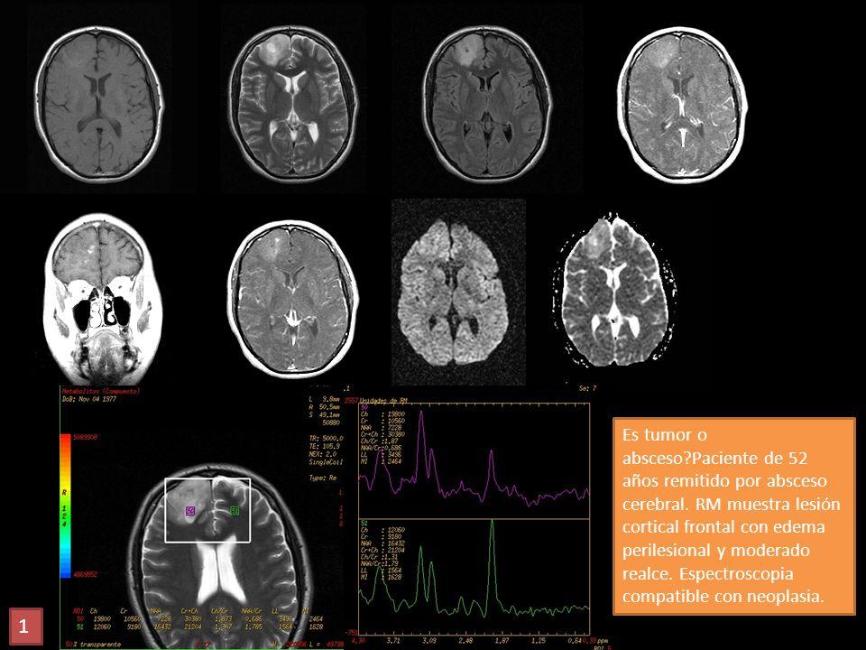 Es tumor o absceso?Paciente de 52 años remitido por absceso cerebral. RM muestra lesión cortical frontal con edema perilesional y moderado realce. Esp