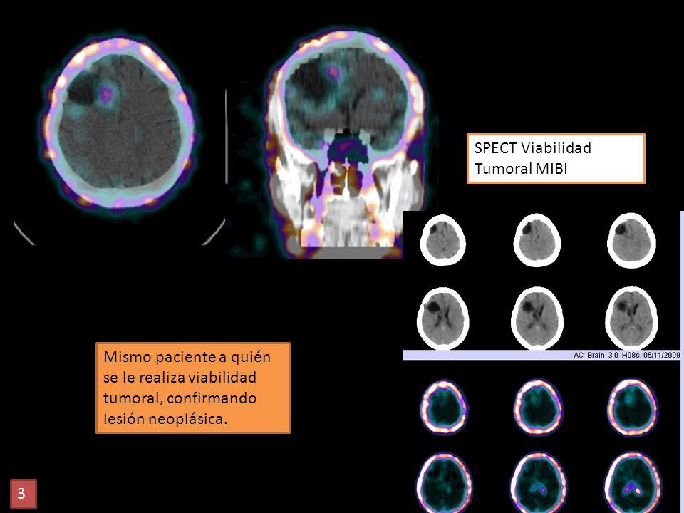 SPECT Viabilidad Tumoral MIBI Mismo paciente a quién se le realiza viabilidad tumoral, confirmando lesión neoplásica. 3