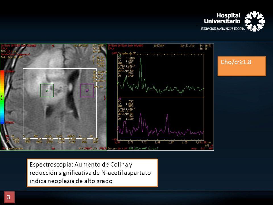 Cho/cr1.8 Espectroscopia: Aumento de Colina y reducción significativa de N-acetil aspartato indica neoplasia de alto grado 3