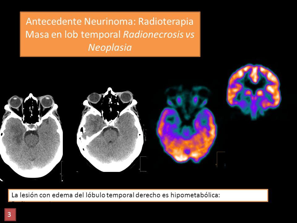 Antecedente Neurinoma: Radioterapia Masa en lob temporal Radionecrosis vs Neoplasia La lesión con edema del lóbulo temporal derecho es hipometabólica: