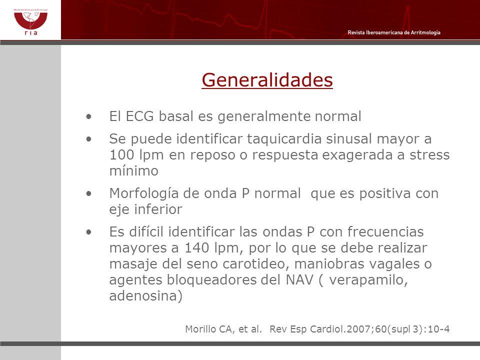 Generalidades El ECG basal es generalmente normal Se puede identificar taquicardia sinusal mayor a 100 lpm en reposo o respuesta exagerada a stress mí