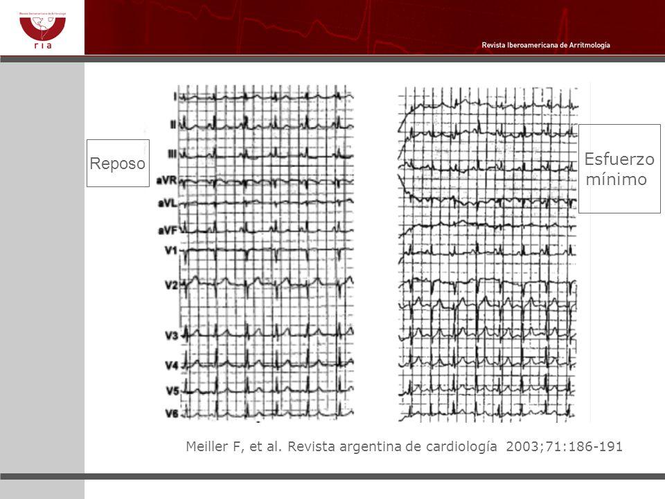 Meiller F, et al. Revista argentina de cardiología 2003;71:186-191 Reposo Esfuerzo mínimo
