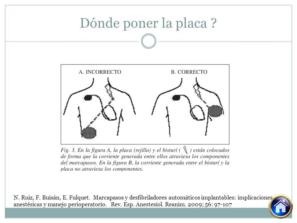 Dónde poner la placa ? N. Ruiz, F. Buisán, E. Fulquet. Marcapasos y desfibriladores automáticos implantables: implicaciones anestésicas y manejo perio
