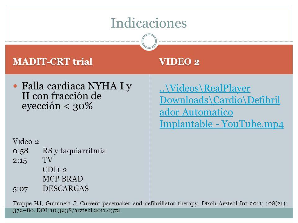 MADIT-CRT trial VIDEO 2 Falla cardiaca NYHA I y II con fracción de eyección < 30% Video 2 0:58 RS y taquiarritmia 2:15 TV CDI1-2 MCP BRAD 5:07 DESCARG