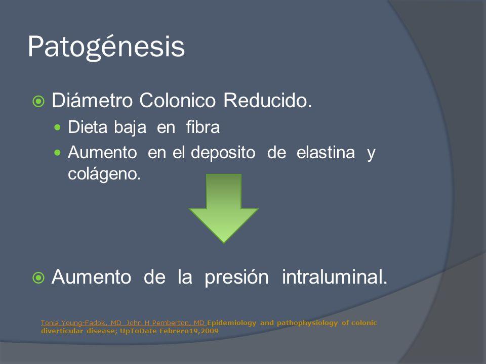 Patogénesis Diámetro Colonico Reducido. Dieta baja en fibra Aumento en el deposito de elastina y colágeno. Aumento de la presión intraluminal. Tonia Y