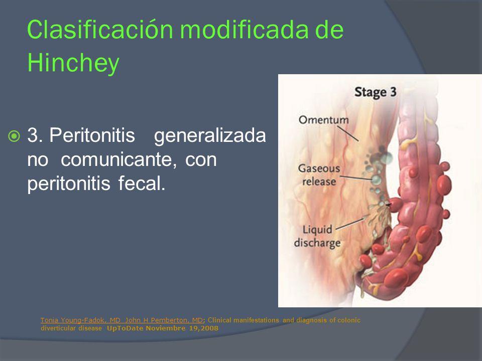 3. Peritonitis generalizada no comunicante, con peritonitis fecal. Clasificación modificada de Hinchey Tonia Young-Fadok, MD John H Pemberton, MDTonia