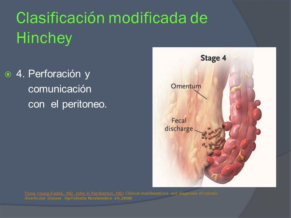 4. Perforación y comunicación con el peritoneo. Clasificación modificada de Hinchey Tonia Young-Fadok, MD John H Pemberton, MDTonia Young-Fadok, MD Jo