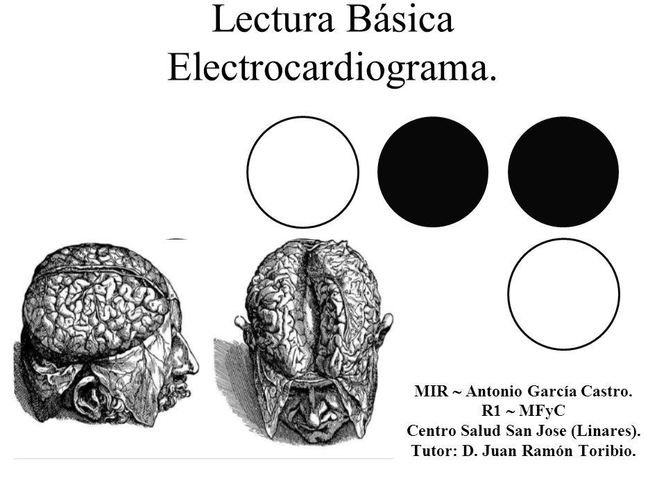 Lectura Básica Electrocardiograma. MIR Antonio García Castro. R1 MFyC Centro Salud San Jose (Linares). Tutor: D. Juan Ramón Toribio.