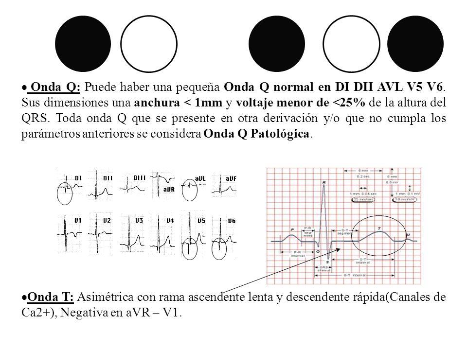 Onda Q: Puede haber una pequeña Onda Q normal en DI DII AVL V5 V6. Sus dimensiones una anchura < 1mm y voltaje menor de <25% de la altura del QRS. Tod