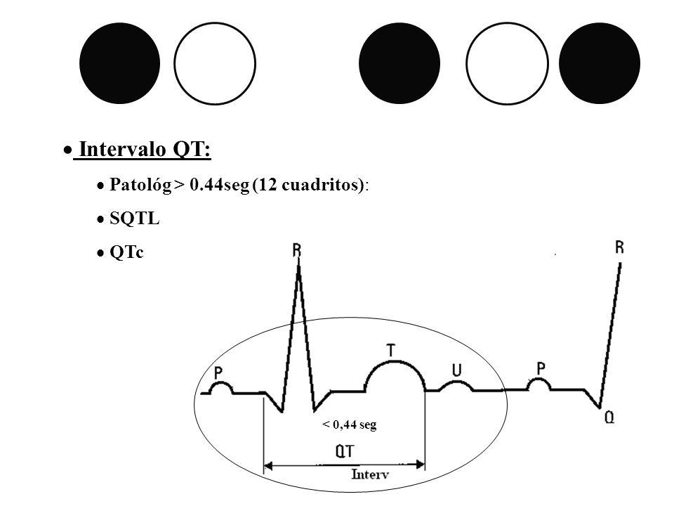 Intervalo QT: Patológ > 0.44seg (12 cuadritos): SQTL QTc < 0,44 seg