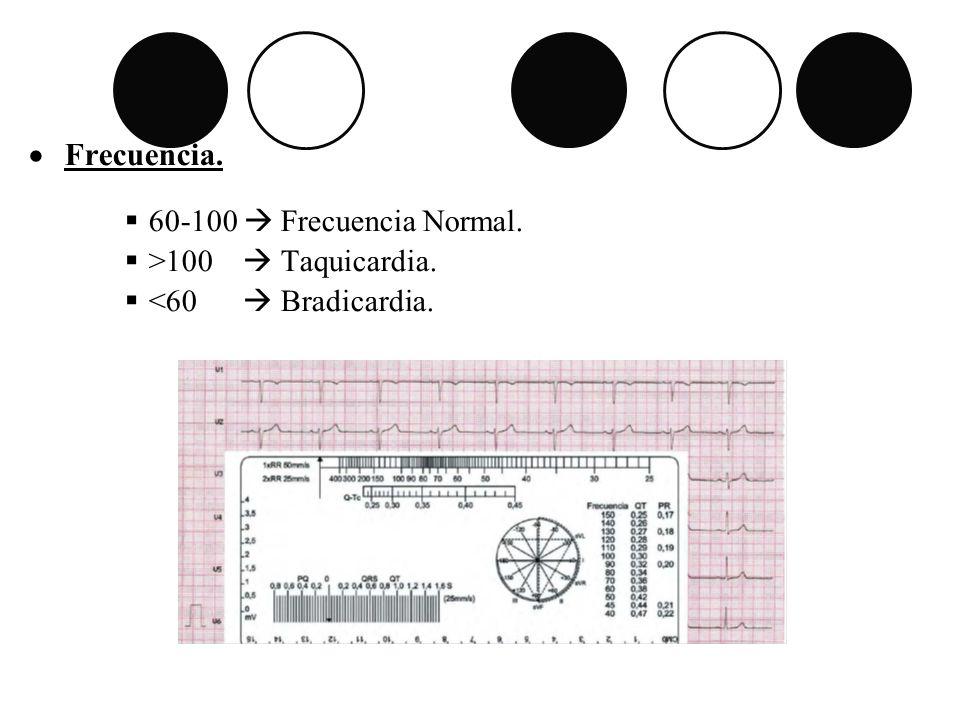 Frecuencia. 60-100 Frecuencia Normal. >100 Taquicardia. <60 Bradicardia.