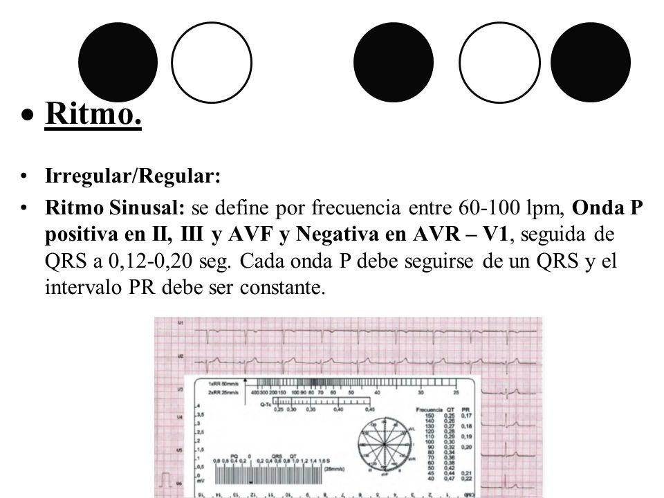 Ritmo. Irregular/Regular: Ritmo Sinusal: se define por frecuencia entre 60-100 lpm, Onda P positiva en II, III y AVF y Negativa en AVR – V1, seguida d
