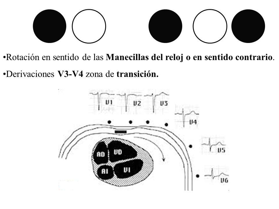 Rotación en sentido de las Manecillas del reloj o en sentido contrario. Derivaciones V3-V4 zona de transición.