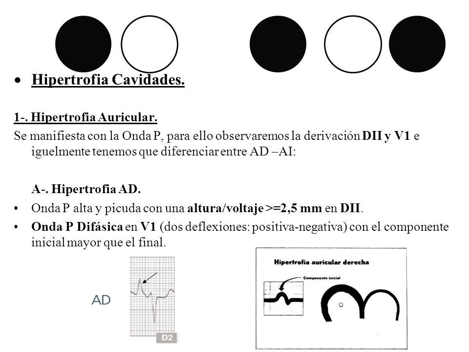 Hipertrofia Cavidades. 1-. Hipertrofia Auricular. Se manifiesta con la Onda P, para ello observaremos la derivación DII y V1 e iguelmente tenemos que