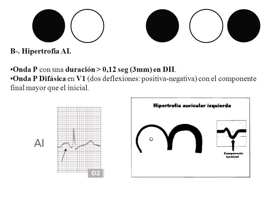 B-. Hipertrofia AI. Onda P con una duración > 0,12 seg (3mm) en DII. Onda P Difásica en V1 (dos deflexiones: positiva-negativa) con el componente fina