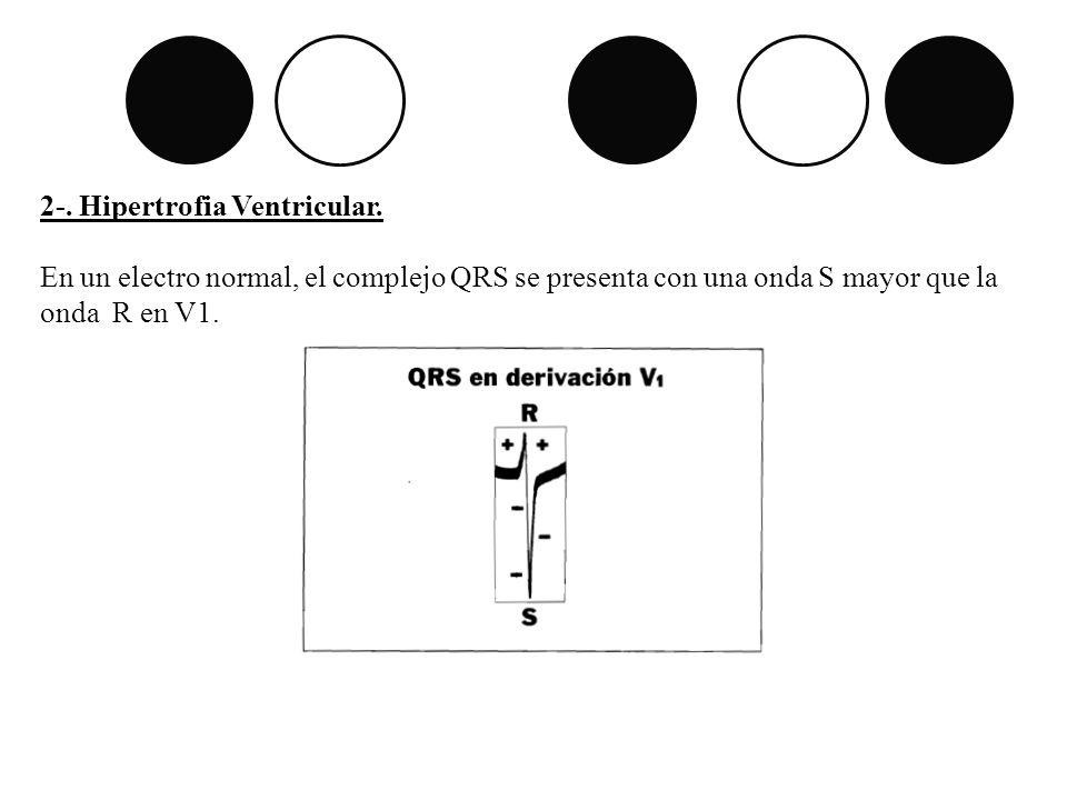 2-. Hipertrofia Ventricular. En un electro normal, el complejo QRS se presenta con una onda S mayor que la onda R en V1.